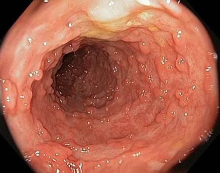 Bệnh Polyp đại tràng là gì