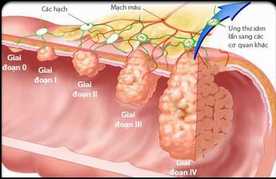 Phát hiện sớm và phẫu thuật ung thư đại tràng