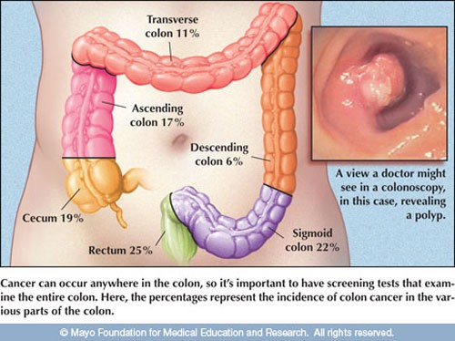 4 giai đoạn ung thư đại tràng